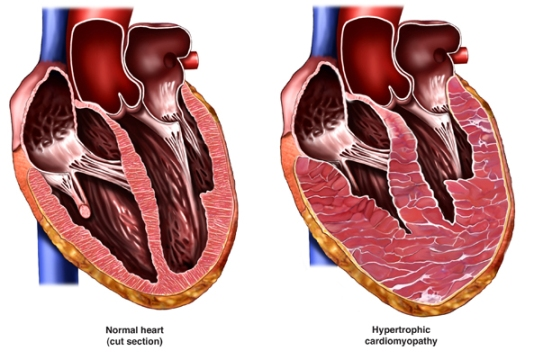 Hypertrophic Cardiomyopathy_New