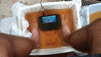 Kate & I got detox foot baths after our dental procedures.
