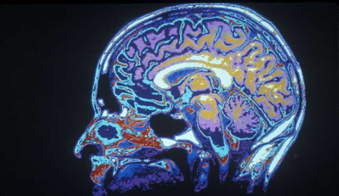 neurotoxicity-brain-mold