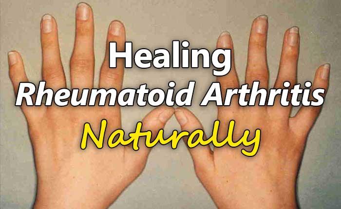 rhumatoid-arthritis-hands-swelling