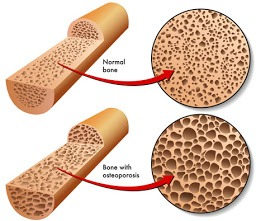 How To Increase Bone Density & Reverse Osteoporosis Naturally